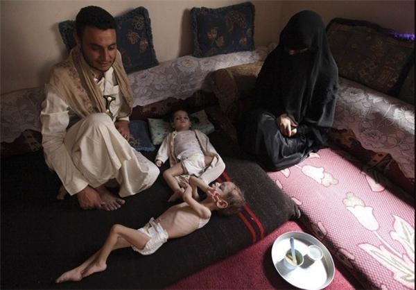 برنامه جهانی غذا: 20 میلیون یمنی از نبود امنیت غذایی رنج می برند
